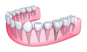Dental Implant Winnipeg Manitoba CA