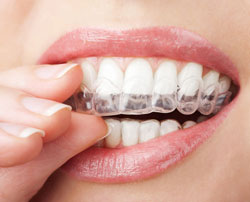 Invisalign Questions Answers Winnipeg Manitoba